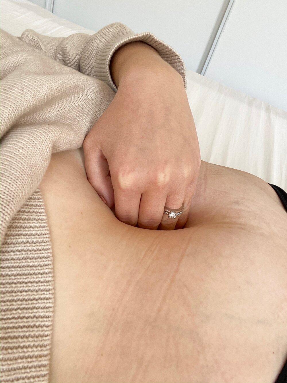 magmuskeldelning efter graviditet.jpeg